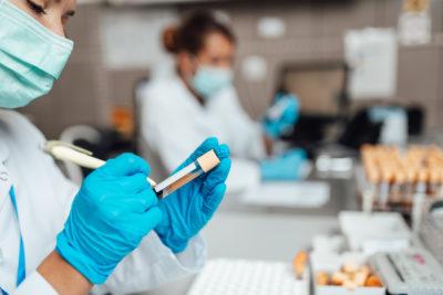 Beschriftung einer Testprobe im PCR-COVID-19 Labor